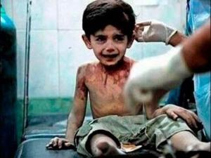 niño herido de guerra